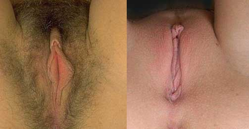 ENCUESTA / SURVEY   ¿Shaved or Hairy? ¿Peluda o Pelada?